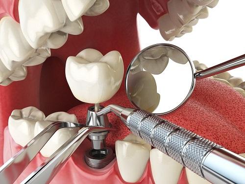 Kiwi Dental Impants