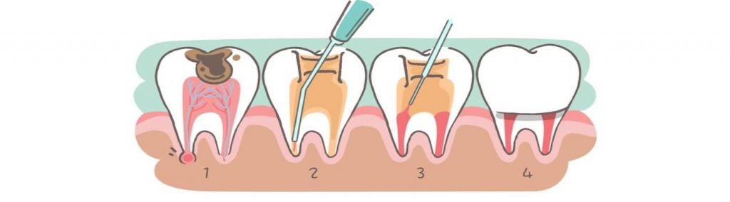 What is Root Canal?