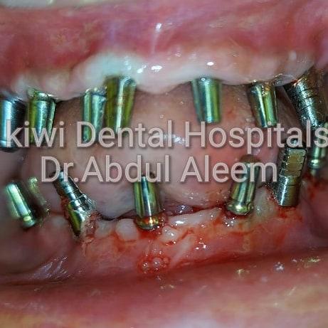 Best Implant center Hyderabad