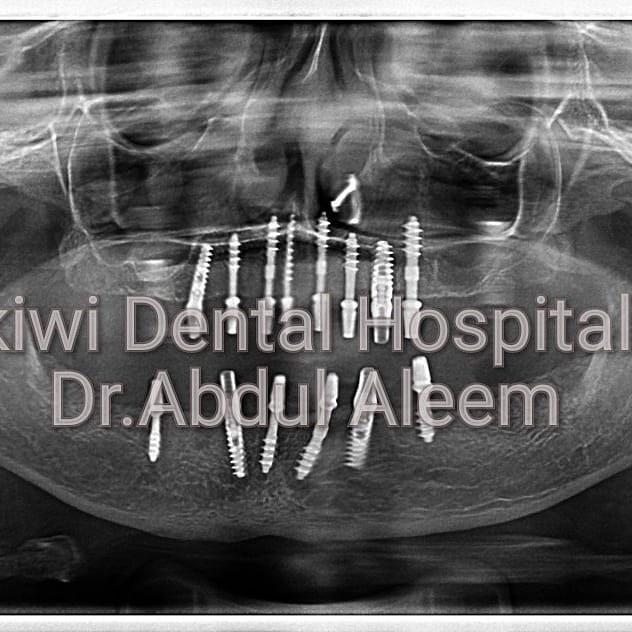Dental Implant center in Hyderabad(smart City)