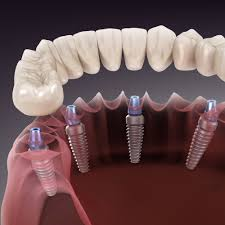 Dr. Abdul Aleem Implantologist – kiwi Dental Hospitals
