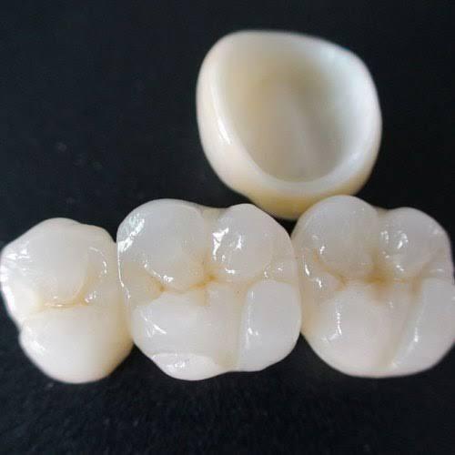 Best Zirconia Crowns in Hyderabad – kiwi Dental Implant Center